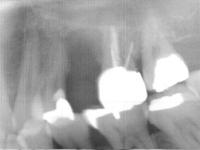 歯根破折抜歯後のインプラント